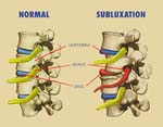 Chiropractors Treat Subluxation